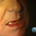 Frattura denti Berlusconi, il parere di un dentista
