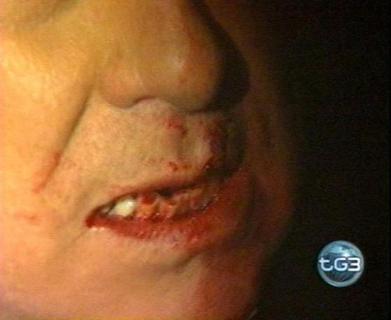 Silvio Berlusconi denti