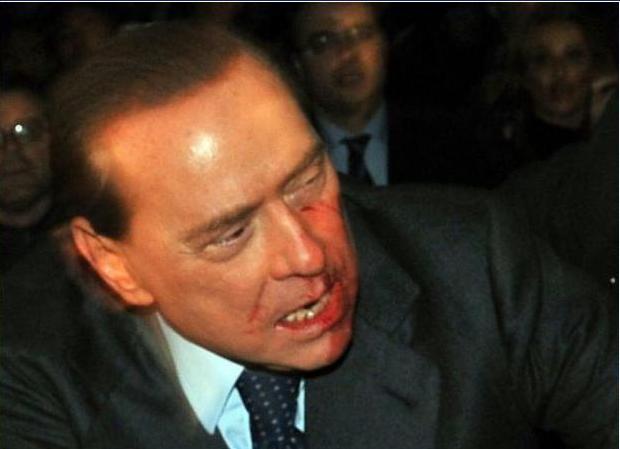 Aggressione Silvio Berlusconi